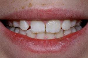 After-Dental Bonding