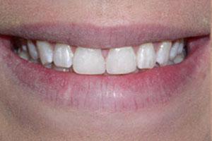 After-Dental Bonding Gap