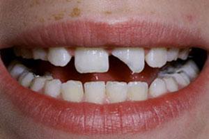 Before-Dental Bonding