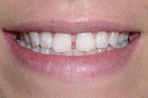 Before-Dental Bonding Gap